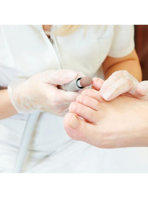 Chiropodist Grinding Patients Feet with Electric Dremel